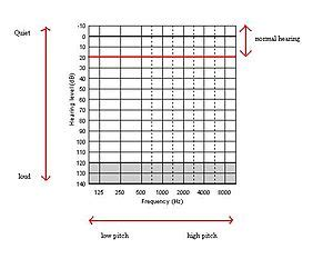 How to Read an Audiogram | First Steps